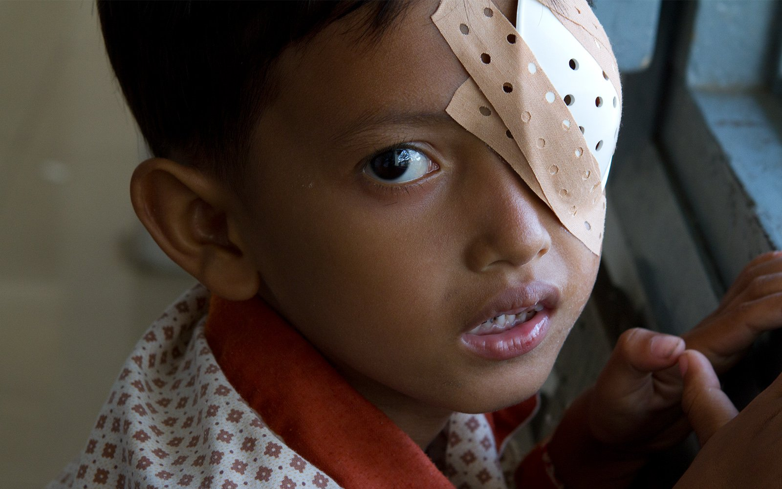 Cambodia child with eye patch